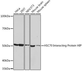 Cell Biology Antibodies 17 Anti-HSC70 Interacting Protein HIP Antibody CAB9567