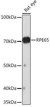 Signal Transduction Antibodies 3 Anti-RPE65 Antibody CAB9615
