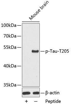 Cell Biology Antibodies 17 Anti-Phospho-Tau-T205 Antibody CABP0168