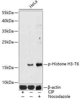 Epigenetics and Nuclear Signaling Antibodies 5 Anti-Phospho-Histone H3-T6 Antibody CABP0899