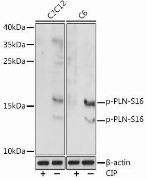 Cell Biology Antibodies 15 Anti-Phospho-PLN-S16 Antibody CABP0907