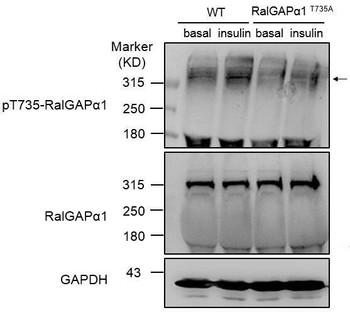 Cell Biology Antibodies 15 Anti-Phospho-RALGAPA1-Thr735 Antibody CABP0908