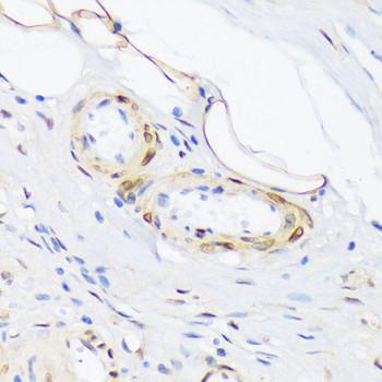 Cell Biology Antibodies 15 Anti-Phospho-PLN-T17 Antibody CABP0910