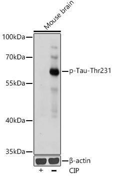 Cell Biology Antibodies 14 Anti-Phospho-Tau-Thr231 Antibody CABP0923