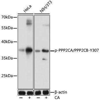 Cell Biology Antibodies 15 Anti-Phospho-PPP2CA/PPP2CB-Y307 Antibody CABP0927