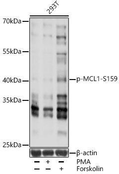 Cell Death Antibodies 2 Anti-Phospho-MCL1-S159 Antibody CABP0947