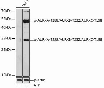 Cell Biology Antibodies 15 Anti-Phospho-AURKA-T288/AURKB-T232/AURKC-T198 Antibody CABP0948