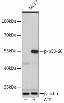 Cell Death Antibodies 2 Anti-Phospho-p53-S6 Antibody CABP0951