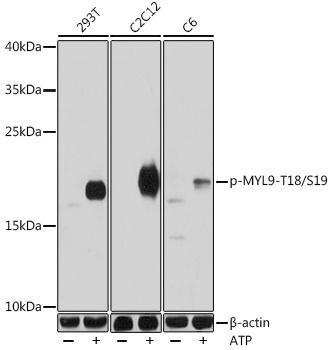 Cell Biology Antibodies 14 Anti-Phospho-MYL9-T18/S19 Antibody CABP0955