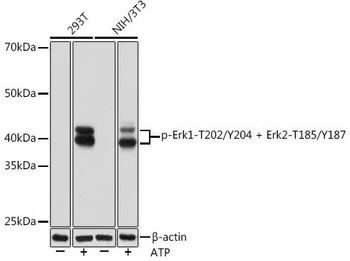 Cell Biology Antibodies 15 Anti-Phospho-Erk1-T202/Y204 Erk2-T185/Y187 Antibody CABP0974