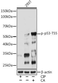 Cell Death Antibodies 2 Anti-Phospho-p53-T55 Antibody CABP0986