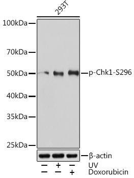 Cell Cycle Antibodies 2 Anti-Phospho-Chk1-S296 Antibody CABP1047