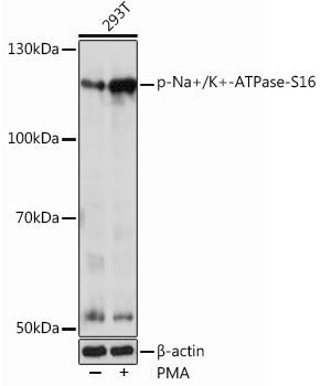 Signal Transduction Antibodies 3 Anti-Phospho-Na/K-ATPase-S16 Antibody CABP1065