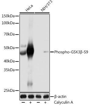 Cell Biology Antibodies 14 Anti-Phospho-GSK3Beta-S9 Antibody CABP1088