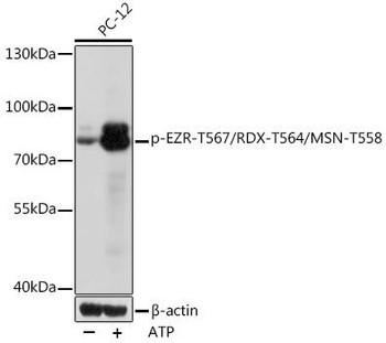 Cell Biology Antibodies 15 Anti-Phospho-EZR-T567/RDX-T564/MSN-T558 Antibody CABP1121