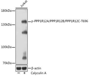 Cell Biology Antibodies 15 Anti-Phospho-PPP1R12A/PPP1R12B/PPP1R12C-T696 Antibody CABP1164