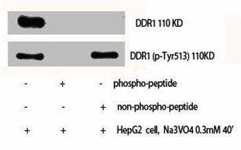 Phospho-DDR1 Y513 Antibody PACO00314