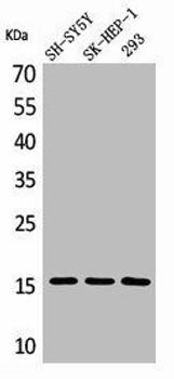 Phospho-SNCA Y125 Antibody PACO00330