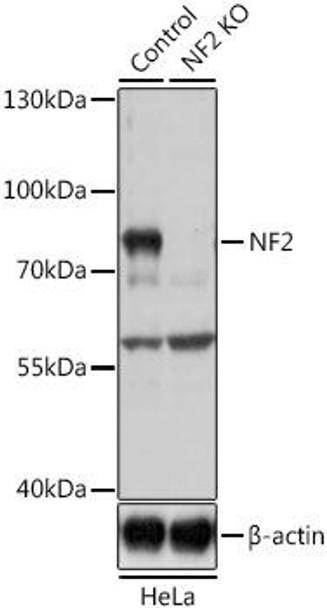 KO Validated Antibodies 1 Anti-NF2 Antibody CAB0739KO Validated