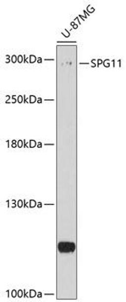 Cell Biology Antibodies 1 Anti-SPG11 Antibody CAB10326
