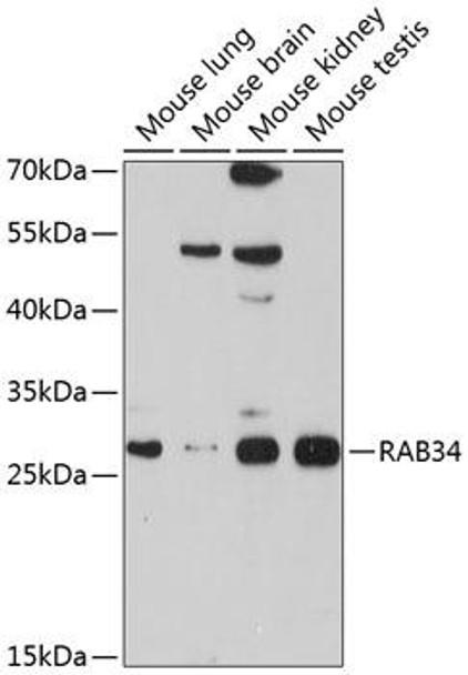 Cell Biology Antibodies 1 Anti-RAB34 Antibody CAB10332