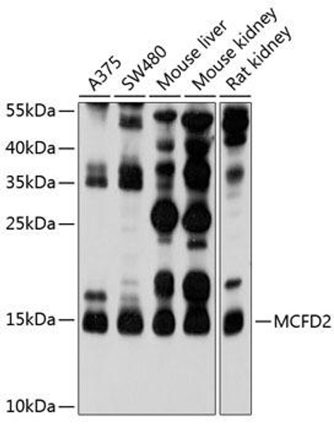 Cell Biology Antibodies 1 Anti-MCFD2 Antibody CAB10376