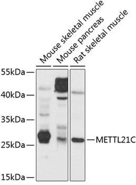 Cell Biology Antibodies 1 Anti-METTL21C Antibody CAB10403
