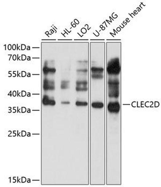 Cell Biology Antibodies 1 Anti-CLEC2D Antibody CAB10421