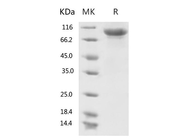 Recombinant 2019-nCoV S1 Protein His Tag