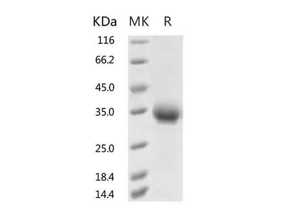 Recombinant 2019-nCoV Spike Protein RBD, His Tag