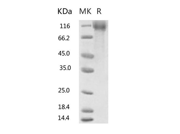 Recombinant 2019-nCoV S1 Protein, Biotinylated His Tag