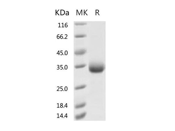 Recombinant 2019-nCoV Spike Protein RBD, His TagF342L