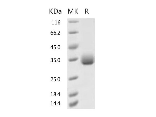 Recombinant 2019-nCoV Spike Protein RBD, His TagV483A