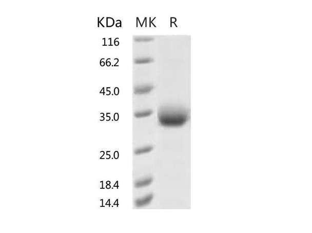 Recombinant 2019-nCoV Spike Protein RBD, His TagA435S