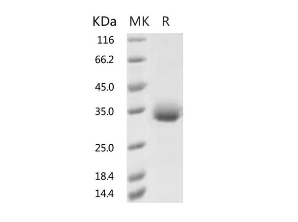 Recombinant 2019-nCoV Spike Protein RBD, His TagN354D