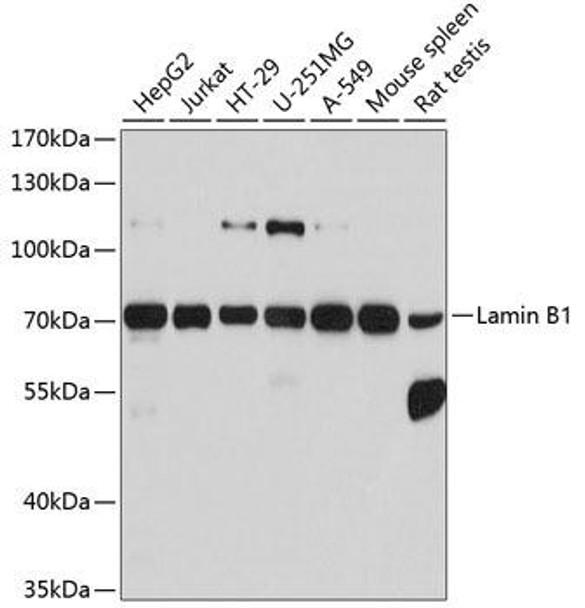 KO Validated Antibodies 1 Anti-Lamin B1 Antibody CAB1910KO Validated