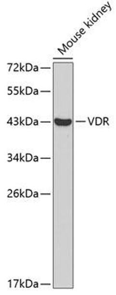 Epigenetics and Nuclear Signaling Antibodies 3 Anti-VDR Antibody CAB2194