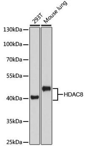 KO Validated Antibodies 1 Anti-HDAC8 Antibody CAB5829KO Validated