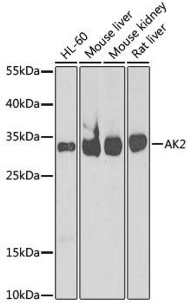 KO Validated Antibodies 1 Anti-AK2 Antibody CAB6519KO Validated