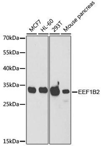 KO Validated Antibodies 1 Anti-EEF1B2 Antibody CAB6580KO Validated