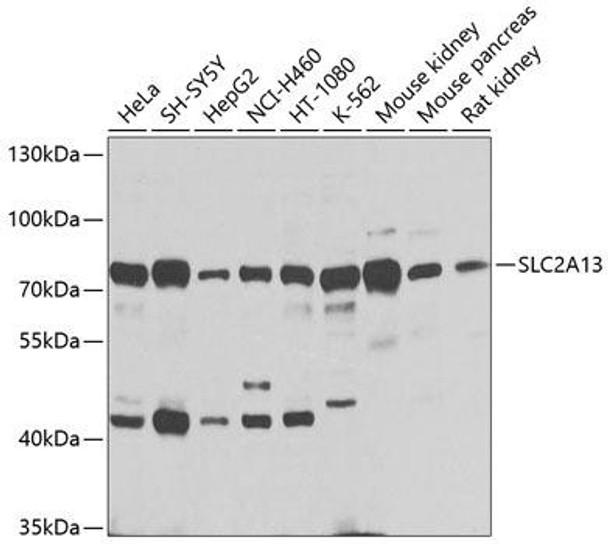 Signal Transduction Antibodies 3 Anti-SLC2A13 Antibody CAB9993