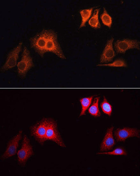 Secondary Antibodies Anti-Rhodamine TRITC Goat Anti-Rabbit IgG HL Antibody CABS040