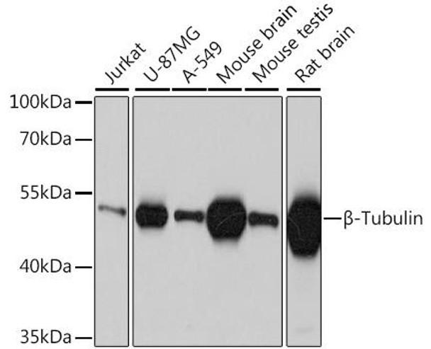 Cell Biology Antibodies 16 Anti-Beta-Tubulin Mouse Monoclonal Antibody CABC010
