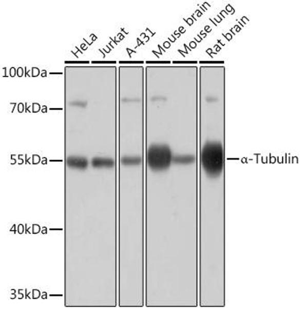 Loading Controls Anti-Alpha-Tubulin Antibody CABC031