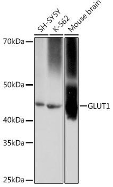 Signal Transduction Antibodies 3 Anti-GLUT1 Antibody CAB11727