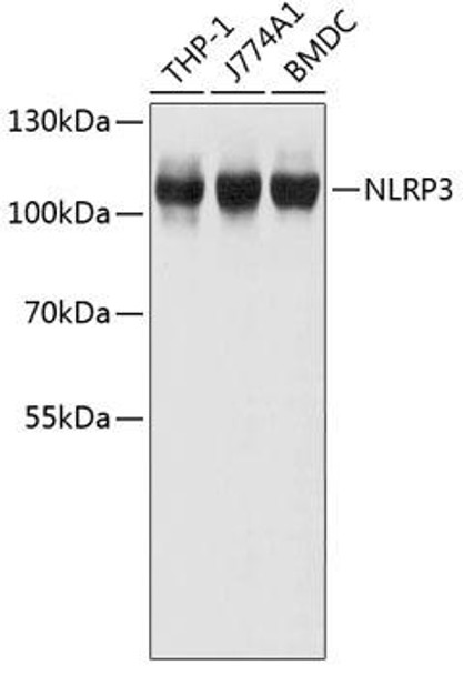 Immunology Antibodies 3 Anti-NLRP3 Antibody CAB11897