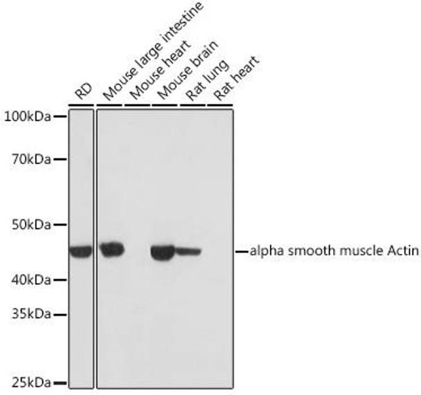 Cell Biology Antibodies 15 Anti-alpha smooth muscle Actin Antibody CAB17910