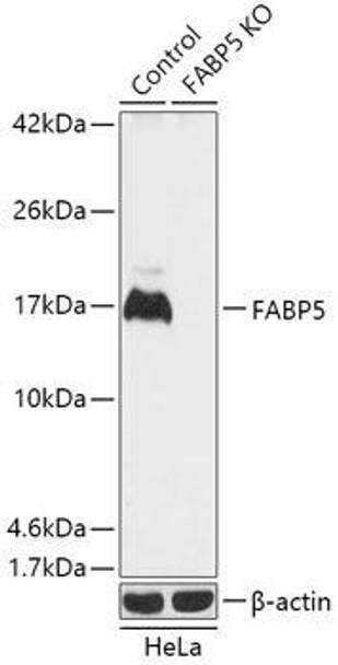 KO Validated Antibodies 1 Anti-FABP5 Antibody CAB18087KO Validated