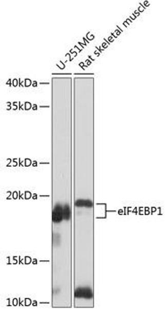 Signal Transduction Antibodies 3 Anti-eIF4EBP1 Antibody CAB19045
