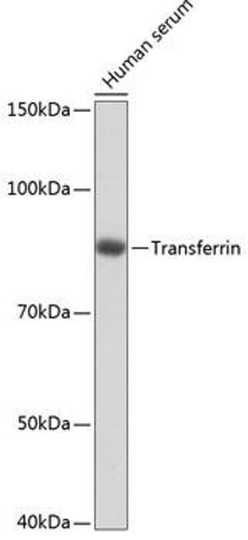 Signal Transduction Antibodies 3 Anti-Transferrin Antibody CAB19130